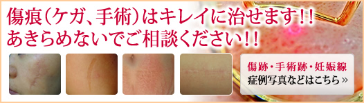 Please contact us for treatment of scars such as injury and surgery.