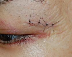 피부 봉합을 실시 표피도 나일론 실로 갔다 다음날 상처의 상태. 딱지없이 創縁가 딱 하나의 선 모양으로되어 있습니다. 딱지를 만들지 않는 것이 흠 관리에 중요합니다.