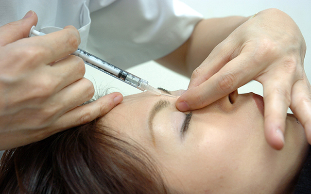 Nasal hyaluronic acid injection