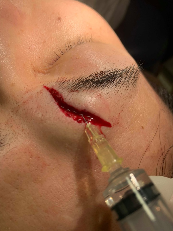 Appropriate treatment for the fighter's laceration!