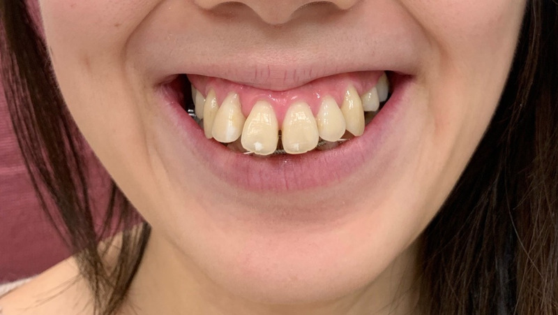 Mouth, Gummy Smile treatment is only 10 seconds