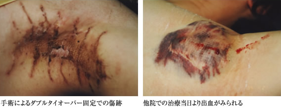 Scar after double tie-over fixation by surgery