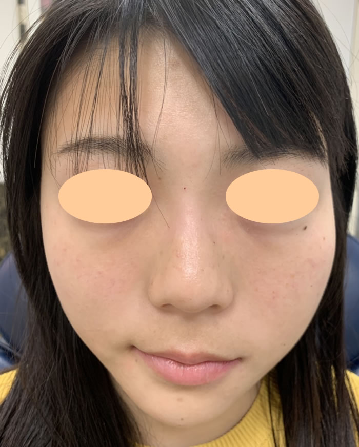 After small face treatment