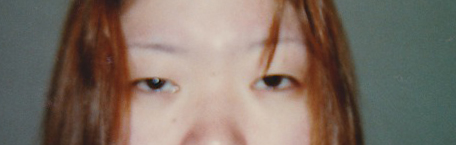 Before double eyelid treatment