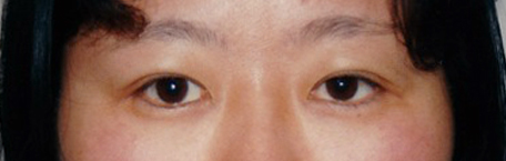 After double eyelid treatment