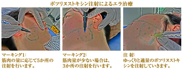 Ella treatment by injection