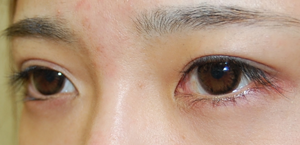Before eye bag treatment