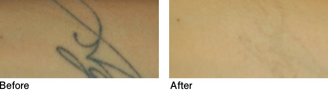 Tattoo removal case photo