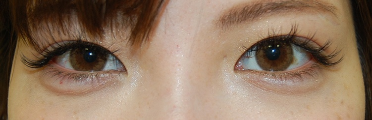 Eye bag case photo-after treatment