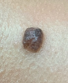 Mole that rises and has a dark color