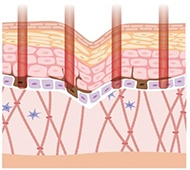 Removal of epidermal pigment and recovery of dermis 1