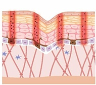 Removal of epidermal pigment and recovery of dermis 2