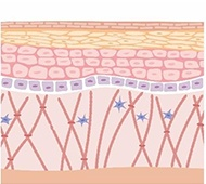 Removal of epidermal pigment and recovery of dermis 4