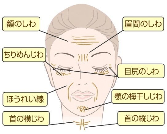 Types of wrinkles and sagging